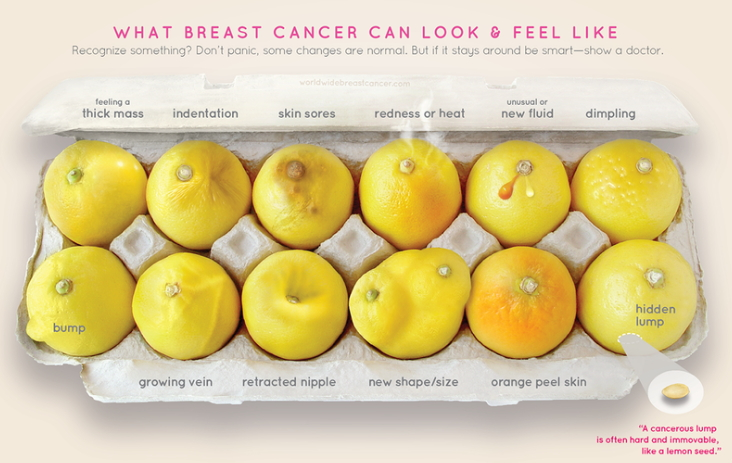 What breast cancer looks and feels like
