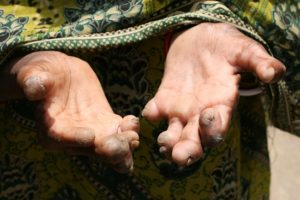 leprosydisability-hand