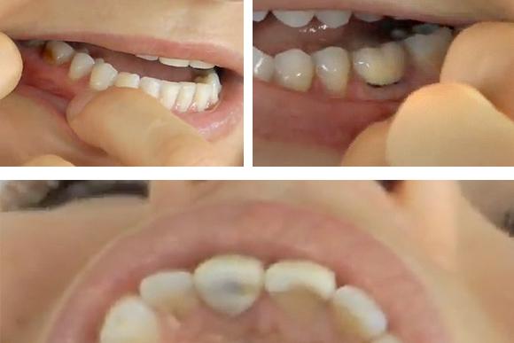bulimic-teeth (1)