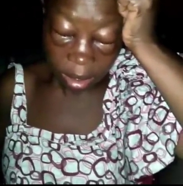 Woman left with swollen eyes after she was allegedly beaten by her husband for starting a business (video)