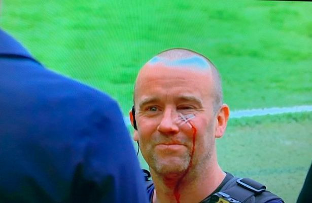 Police officer slashed in face with bottle during protests by Man United fans (photos)