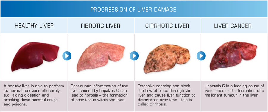 Causes Of Liver Damage