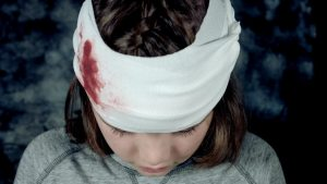 Mild Head Injuries Are Now Curable: Latest Reports