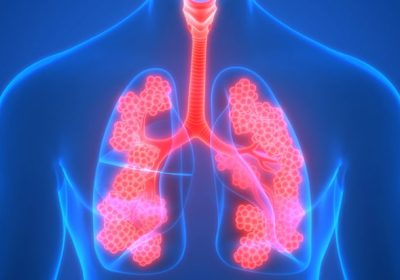 The Newly Approved Drug Helps To Control And Remove Lung Cancer