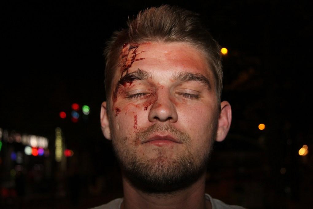 Thaddeus_Pall_injuries.jpg