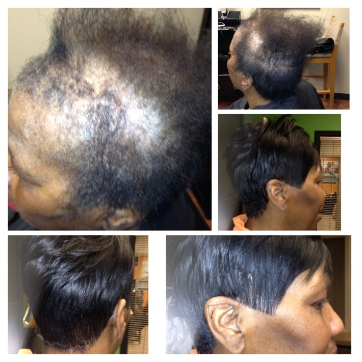 Full Custom Sewin 'no Glue' Natural Looking Sewin Thinning Hair throughout Hairstyles For Black Women With Alopecia