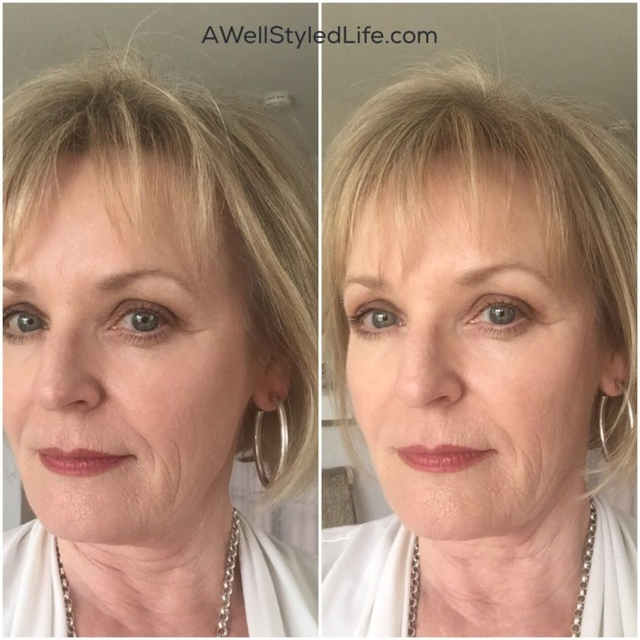 Real Help For Thinning Hair In Women Over 50   Hair   Thin Hair in Short Haircuts For Women With Hair Loss