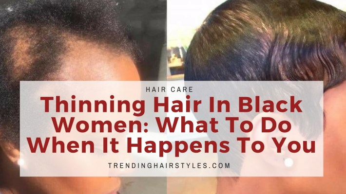 Thinning Hair In Black Women: What To Do When It Happens To You throughout Hairstyles For Black Women With Alopecia