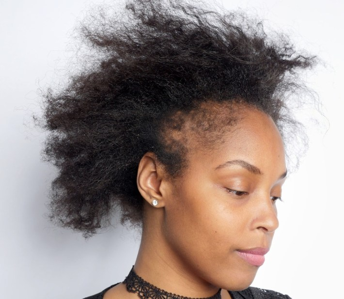What Black Women Need To Know About Hair Loss - The New York Times with Woman Hair Falling Out Haircut Style