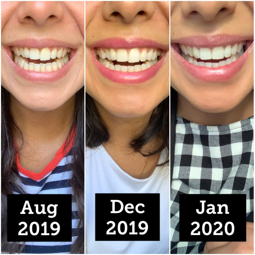 Before and after my clear aligners. How much do clear aligners cost?