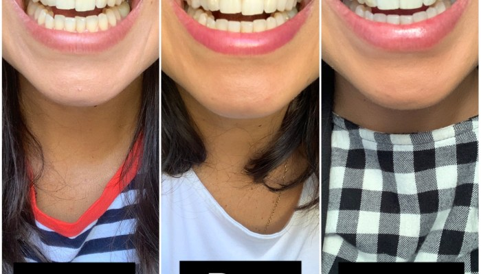 My smile before and after Clear Aligners