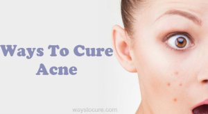 Ways To Cure Acne