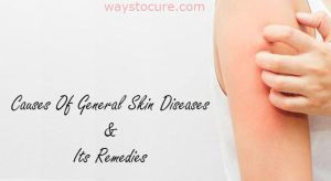 Causes Of General Skin Diseases And Its Remedies