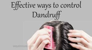 Effective ways to control Dandruff