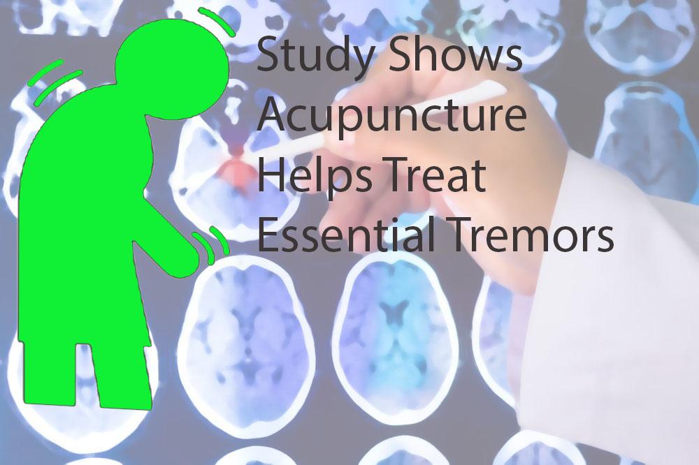 acupuncture essential tremors