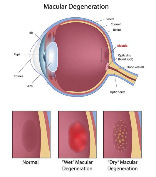 A clinical illustration showing parts of the eye, highlighting the macula and showing normal, wet and dry macular degeneration.