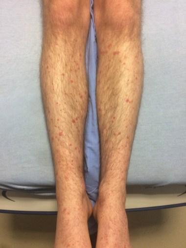 LCV Legs 1