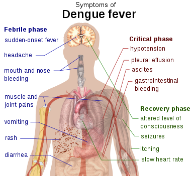 388px-Dengue_fever_symptoms.svg