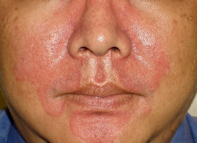 脂漏性皮膚炎—又紅,可能不是敏感肌