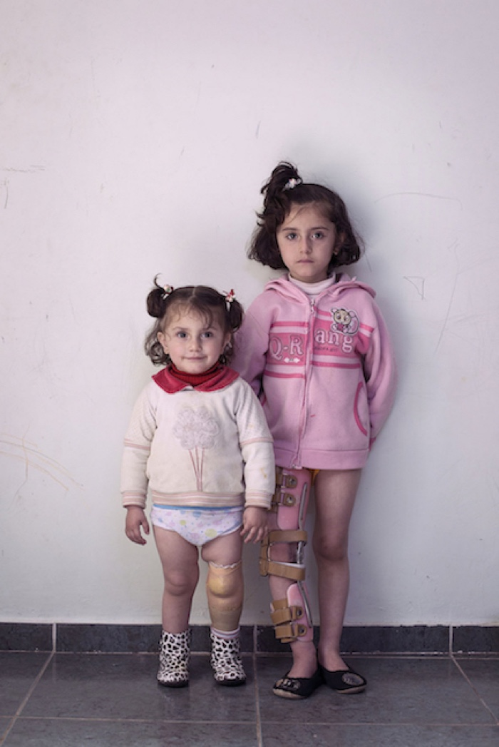 Duwa´a,2 & Schahd,5 al-Sarchan,Father Hassan 30, 5 children, worked as taxi driver betweeen Amman and Damascus. 13, April 2013 11am a rocket hit the 4. floor of the house of his uncle where they lived. They had moved there after their home came under  control of the Syrian army. As soon as the Syrian army moved in all people left.He was in the third floor when the rocket hit the balkony than through three walls and injured the daughters badly in the bathroom were they played. 22 rockets were shot in less than an hour. The day before the FSA captured a nearby checkpoint (700m) and killed all the soldiers. Hassan takes Schahd with the notorbke to a nearby field clinic of the FSA with the motorbike of his uncle. She has a big shrapnelwound on the knee. He doesn´t know anything about Duwa´a fate than. She is brought by car to the same clinic. Her lower leg is cut of by the shrapnel and the stump is sewn. Two days after she is brought to Rantha  from there to al-Jasira Hospital in Amman.A transplant is made for the stump. The prosthesis was provided by MSF, they will also make the next operation. Schahd 1,5 spent month, Duwa´a 3 month in the clinic of Syria Cross Borders. Hassan visited the girls once a week as transport is too expensive for their budget.Now they wait for the next operation. After they want to go back to Dera´a. The 125 JD for rent is from his father. Two of Hassan´s brothers were arrested and there are no news for 1,5 years. He was arrested for 5days and his car was torched by the Syrian custoums authorities. The oldest child can´t go to school too far. Amman, Jordan, 2014.