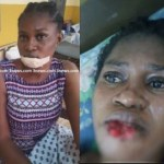 (Photo) See what a jealous girlfriend did to her Suspected rival in Ghana