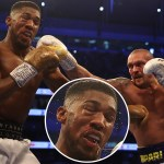 Anthony Joshua rushed to Hospital After damaging Eye Socket in his Title Defeat to Oleksandr Usyk  (photos)