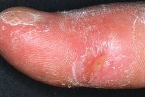 systemic_sclerosis_finger