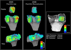 As an Imaging CRO, ImageIQ supports drug and medical device clinical trials through imaging and biomedical expertise, cutting edge image analysis and IT software technology tailored for the design and workflow for each clinical trial. This image shows the quantification of cartilage degradation (thickness) of the patella, femur and tibia.
