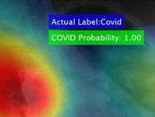 Software firm licenses UD tech to quickly ID COVID-19
