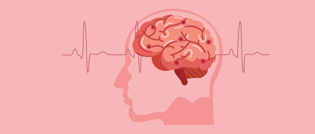 Scientific medical illustration of human brain stroke illustration.