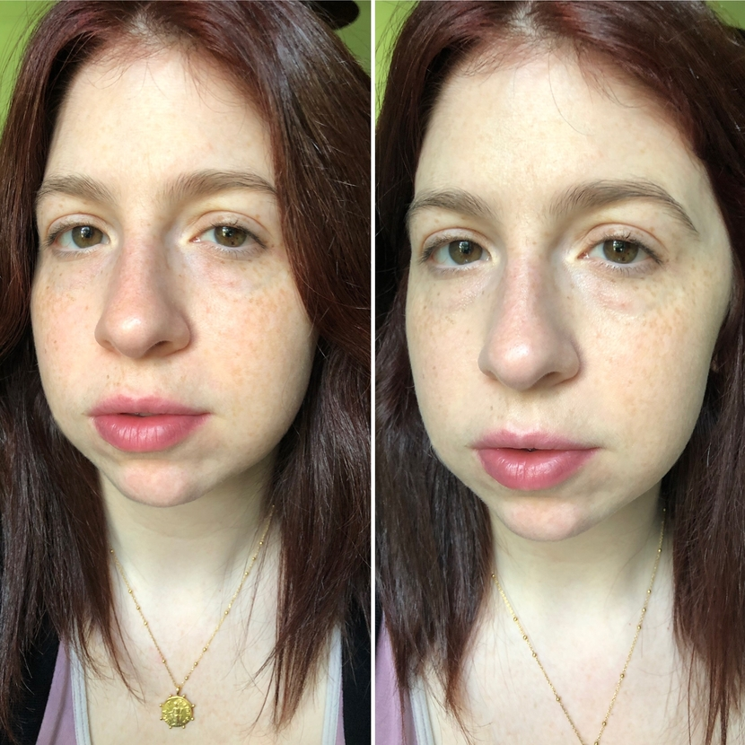 Before (left) and after (right) using the Glossier Stretch Concealer all over my face and under my eyes.
