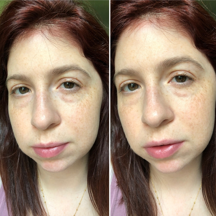 Before and after application of Neutrogena concealer