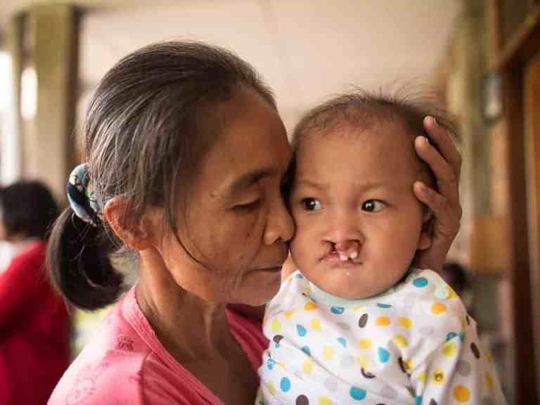 Cleft palate baby in Sumatra