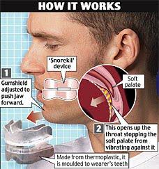 anti-snoring-mouthpiece
