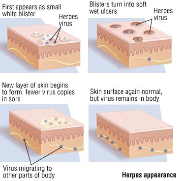 Is The Ultimate Herpes Protocol a Scam?