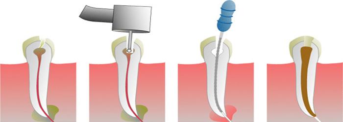 Endodontologie tandartspraktijk Amsterdam noord