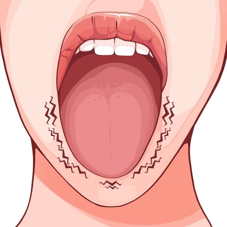 6 Things Your Tongue Can Reveal About Your Health