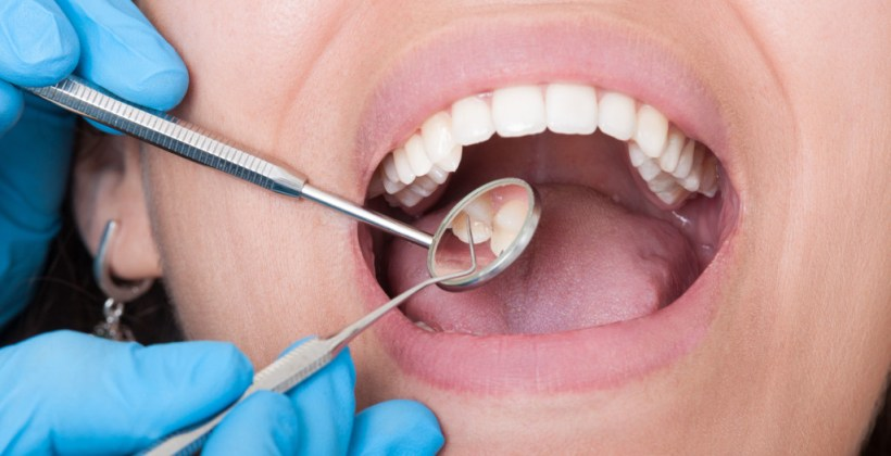 Your Family Dentist and Talks about Cavities