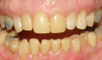 TOOTH DISCOLORATION