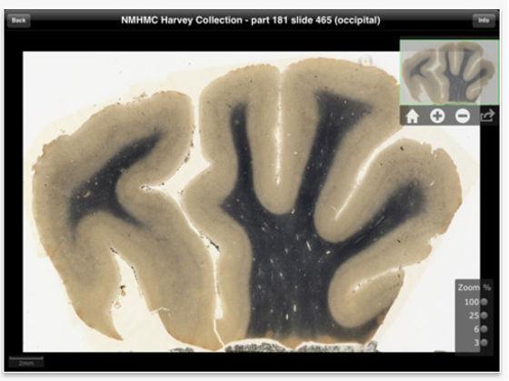 Aplicación del cerebro de Einstein disponible para iPad - cerebro-de-einstein