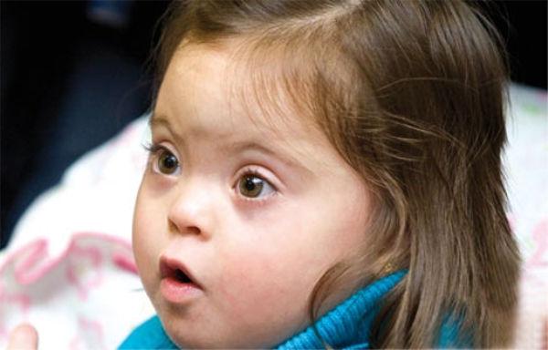Nueva investigación da esperanzas a personas con Síndrome de Down - cura-sindrome-de-down