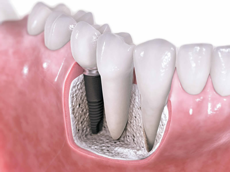 Con nuevos materiales intentan mejorar implantes dentales - Implantes-Dentales-Materiales