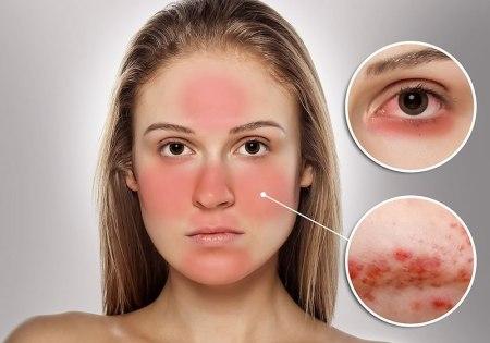 Ácaros, detonantes de enfermedad que provoca piel roja en el rostro