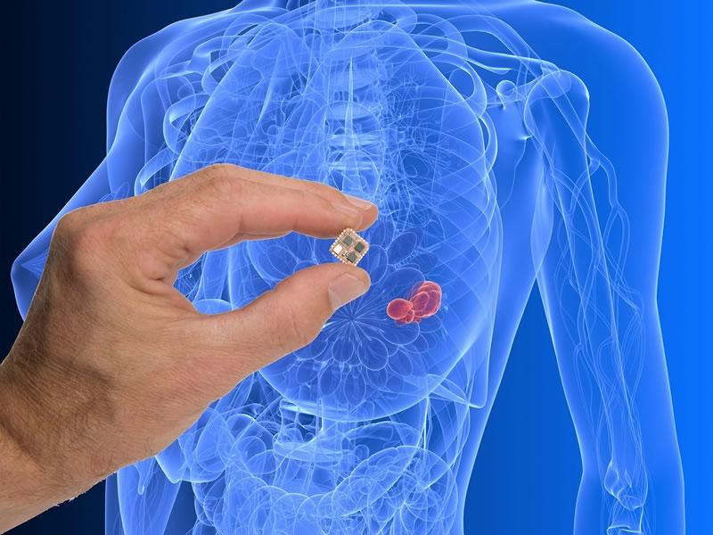 Con dispositivo eléctrico buscan detectar proteínas asociadas a cáncer de mama - detectar-cancer-de-mama