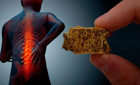 En busca de un tratamiento contra la osteoporosis a partir del agave tequilero