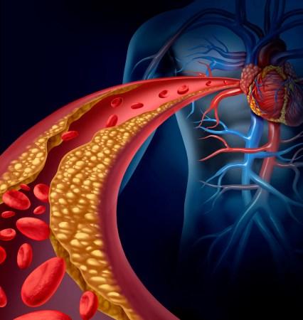 Nanotecnóloga mexicana busca procedimiento que disminuye el colesterol maligno