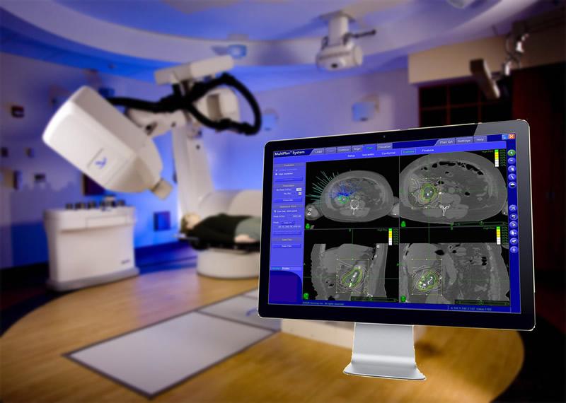 Politécnico crea software que visualiza tumores cerebrales en 2D y 3D - tumores-cerebrales-2d