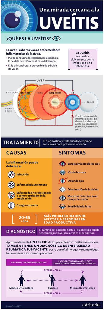que es uveitis Lanzan tratamiento para uveítis, una de las principales causas de ceguera