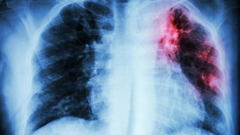 Científica mexicana en Alemania incursiona en soluciones fisiológicas a la fibrosis pulmonar