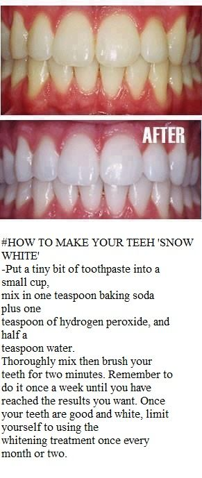 teeth whitening home remedy… Ok when I first saw this I thought no way, its gonn